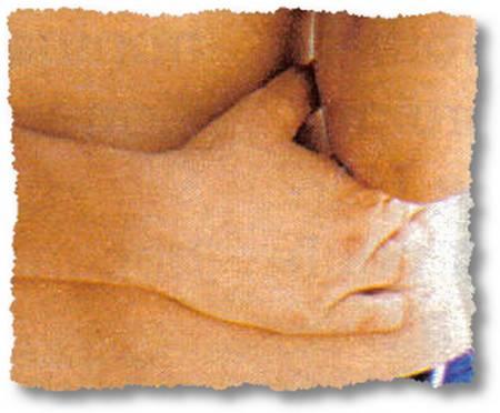 Dr. Frankenstein in der Freizeitwoche näht auch total verkrüppelte Hände an hübsche Körper...